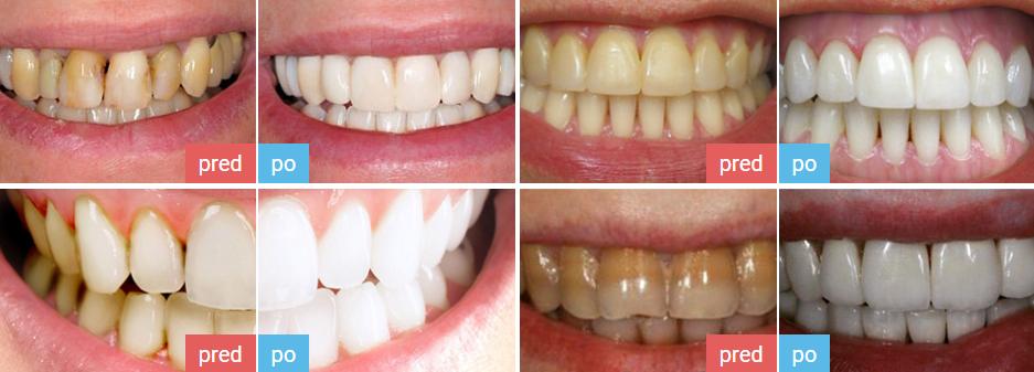 denta seal najlepšie bieliace zubná pasty