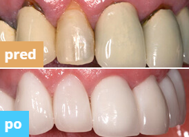 denta seal zubná pasta